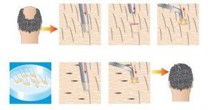 FUE vs FUT from Robotic Hair Restoration of Long Island