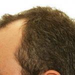 Types Of Hair Transplant Options by RHRLI
