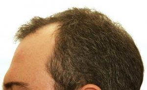 FUE vs FUT Hair Transplants