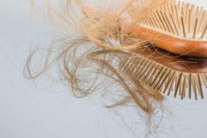 iGrow System for Hair Restoration