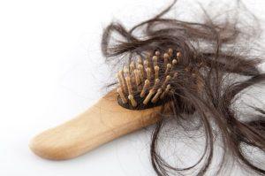 does stress cause hair loss