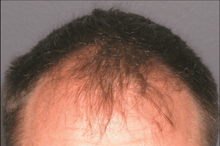 RHRLI before and after hair restoration