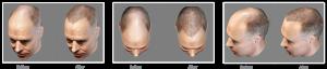 3D Image using the ARTAS® hair transplant System from RHRLI