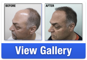 Hair Loss Before and After from RHRLI