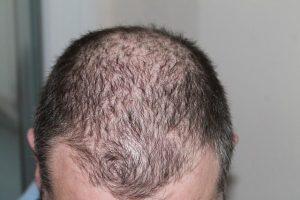 Hair Loss Treatments by Robotic Hair Restoration Long Island