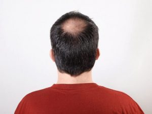 Hair Restoration for Men