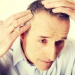 Understanding Men's Hair Loss on Long Island with RHRLI