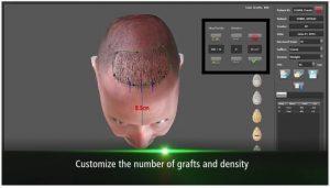 ARTAS® Recipient Site Making Simulation from RHRLI