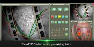 ARTAS® Recipient from RHRLI