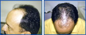 Before Photos of Hair Transplants by RHRLI