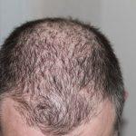 Hair Loss Treatment Options on Long Island with RHRLI