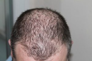 hair loss treatment on long island