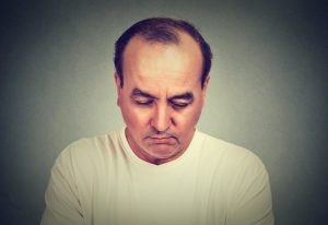 the cost of hair loss