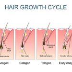 Newly Transplanted Hair Growth by RHRLI