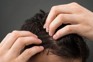 Hair Restoration by RHRLI