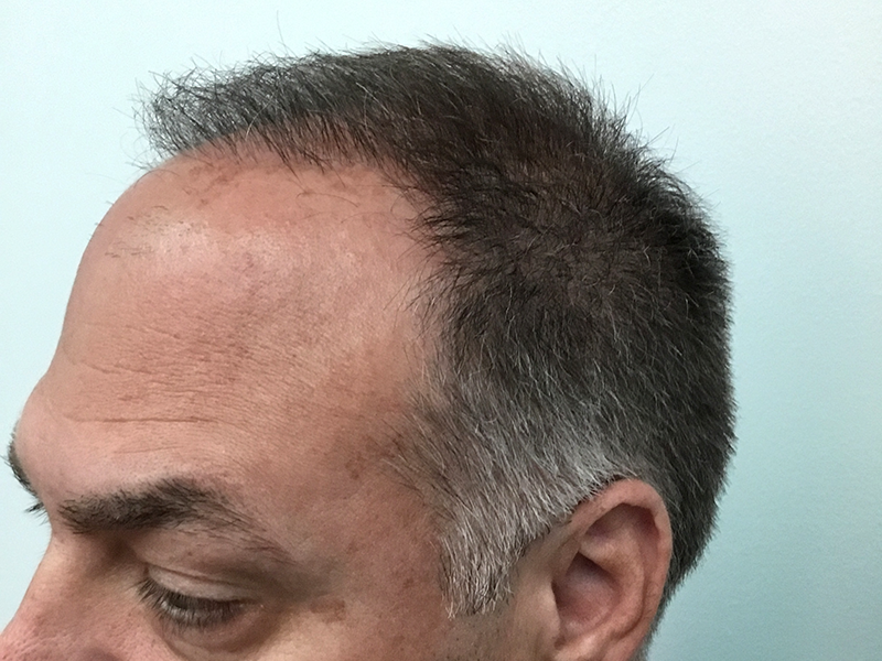 900 Hair Graft RHRLI After