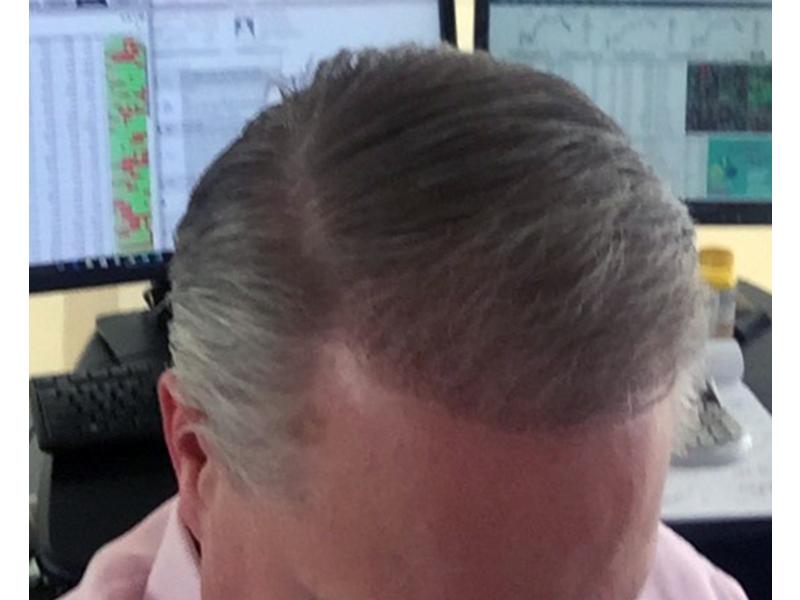 2000 Hair Graft RHRLI After