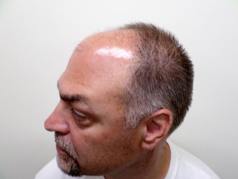 900 Hair Graft Before RHRLI