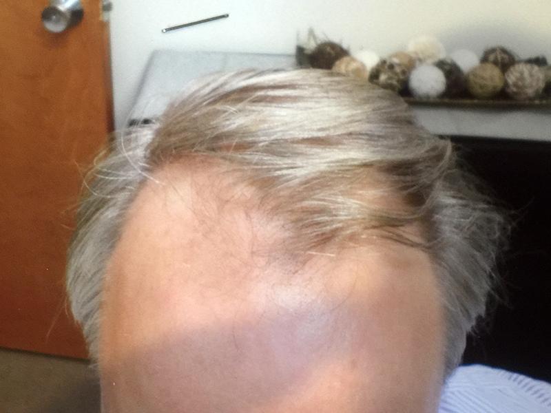 2000 Hair Graft RHRLI Before