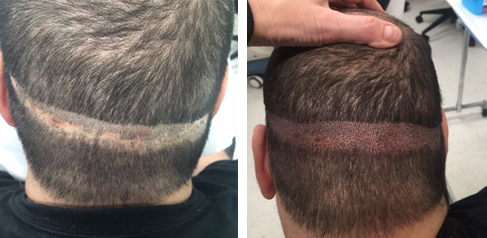RHRLI Scalp Micropigmentation