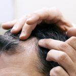 Preparing for Your Hair Restoration Procedure by RHRLI