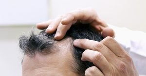 Preparing for Your Hair Restoration Procedure from RHRLI