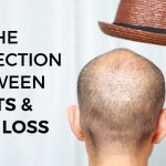 The Connection Between Hats and Hair Loss by RHRLI