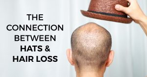 Connection Between Hats and Hair Loss from RHRLI