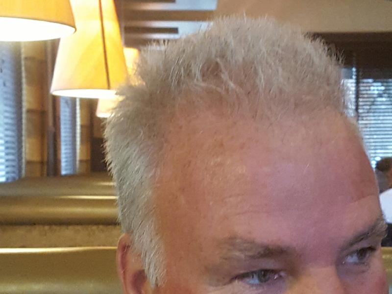 800 Hair Grafts RHRLI After
