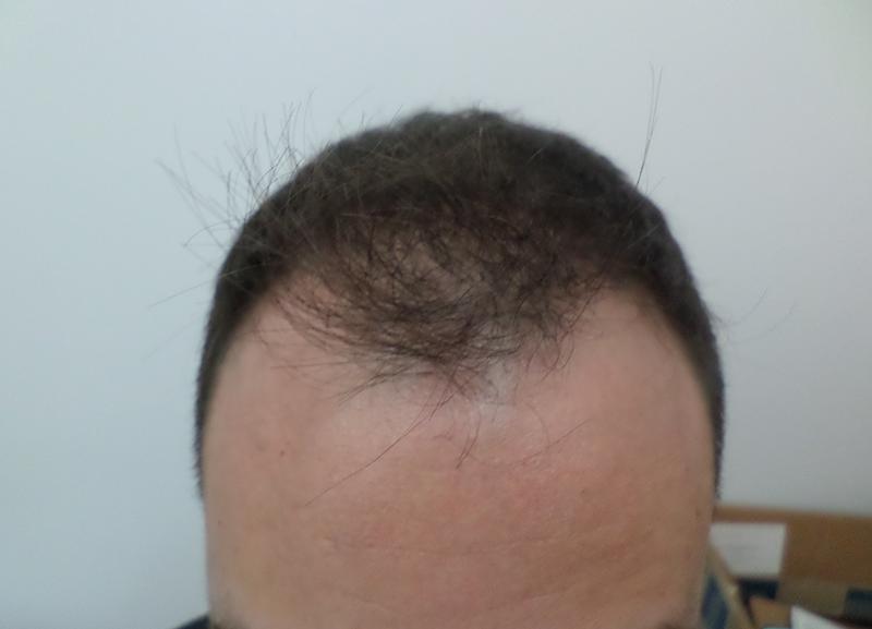1500 Hair Grafts RHRLI Before