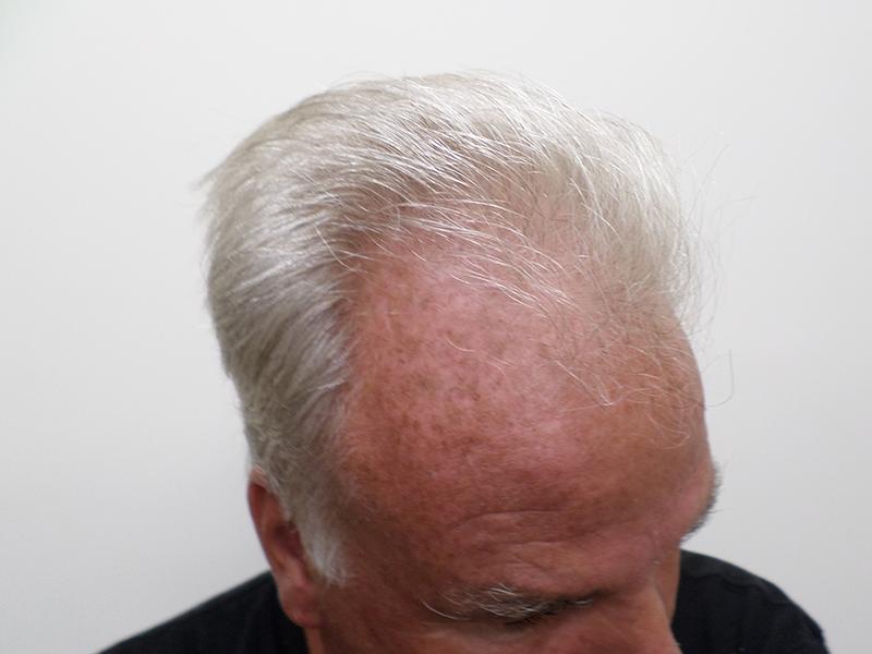 800 Hair Grafts RHRLI Before