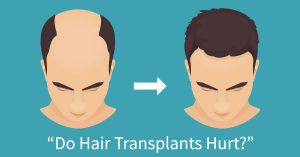 Robotic hair replacement is minimally invasive and virtually pain free.