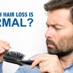 Are you losing too much hair or is this natural shedding?