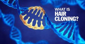 What is Hair Cloning?