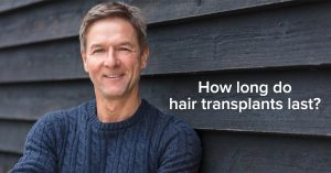 Hair Transplants: How Long Do They Last?