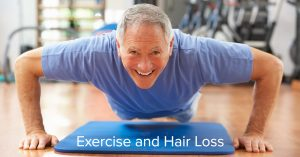 Understanding Exercise and Hair Loss.