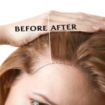 Various autoimmune diseases could be behind your thinning hair.