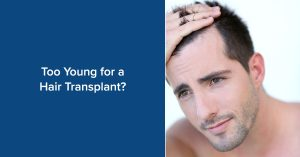 How young is too young for a hair transplant?