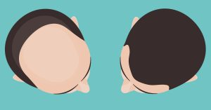 Baldness, Thinning, and Hair Transplants.