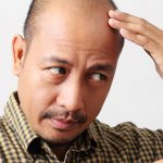 Have you noticed hair loss as you've aged?