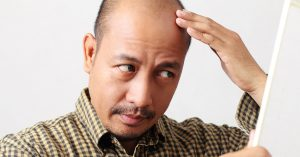 How does aging affect hair loss?