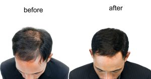 ARTAS can improve your hair quality.
