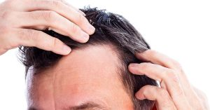 Are you noticing thinning hair?