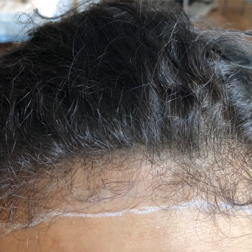 Before Female Scalp Micropigmentation procedure