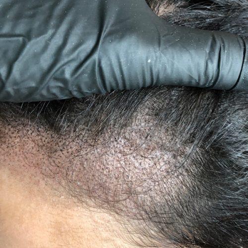 After Female Scalp Micropigmentation procedure