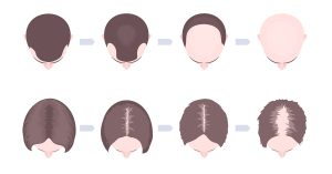 The Evolution of Your Hair Loss