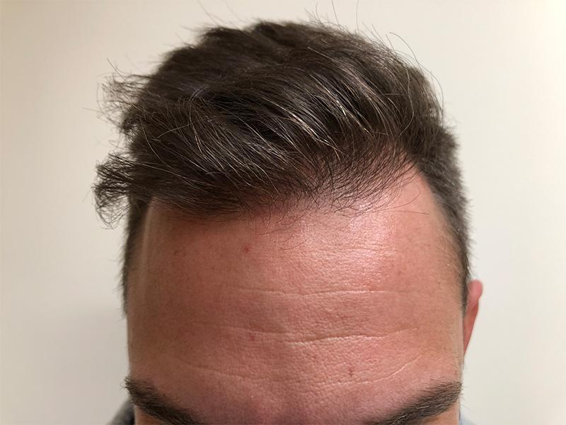 after hair transplant RHRLI