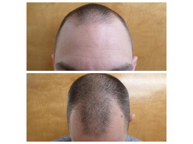 RHRLI before hair transplant