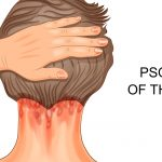 Psoriasis of The Scalp and hair loss
