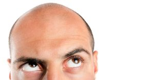 a male looking up towards his baldish head pondering his hair loss